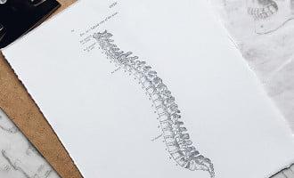 Bad posture. postural kyphosis, hunched back